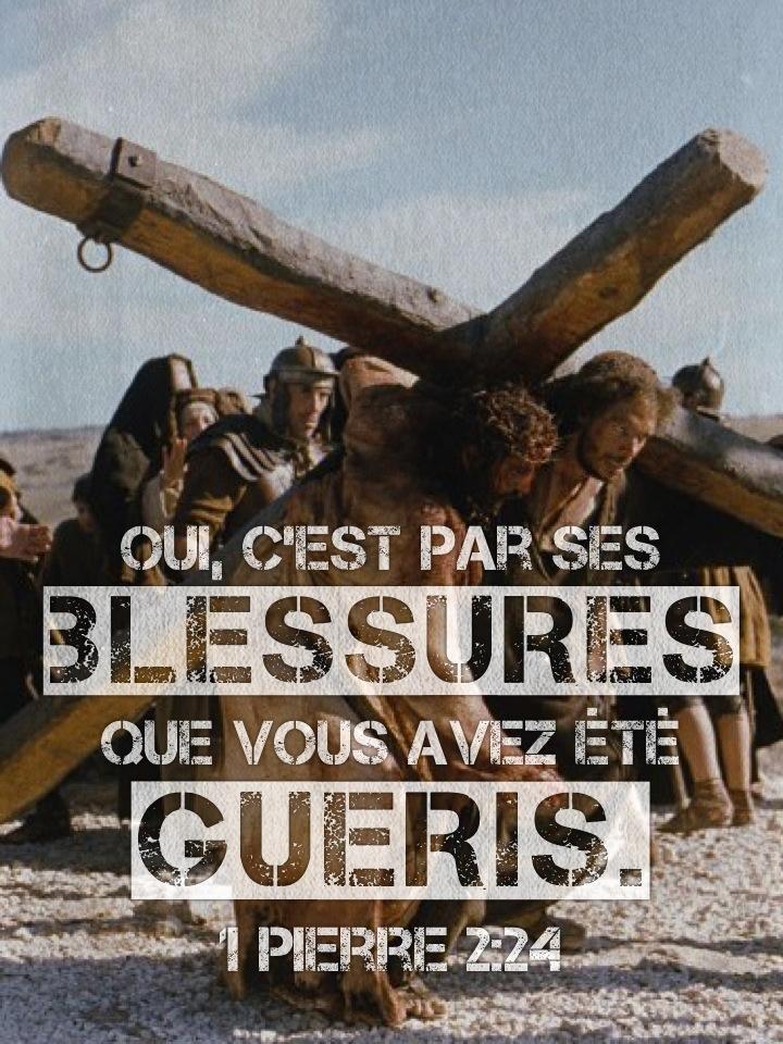 1 Pierre 2:24